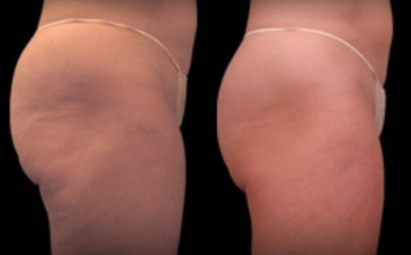Synergie Ultimate Cellulite Solution By Avae Salon In Medford Or Alignable