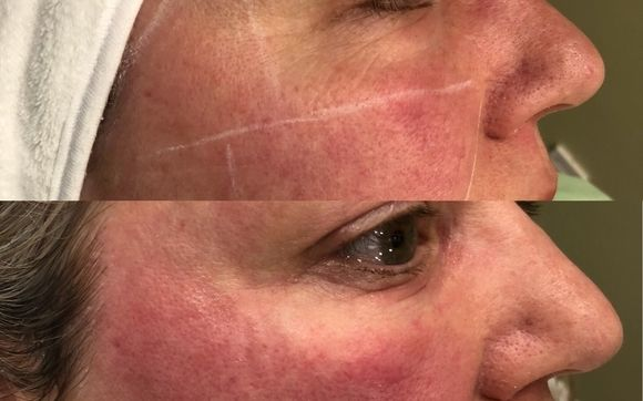 Laser Wrinkles And Skin Tightening Acne Scars Spider Vein Laser Hair Removal By Body N Bloom Laser And Aesthetics Clinic In Ottawa On Alignable