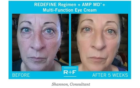 Amp Md System And Intensive Renewing Serum By Rodan Fields In