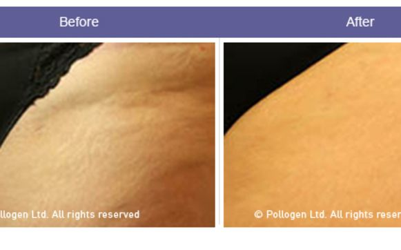 Newest Cellulite Solution Now Available At Elite By Elite Laser Centers In Stony Brook Ny Alignable