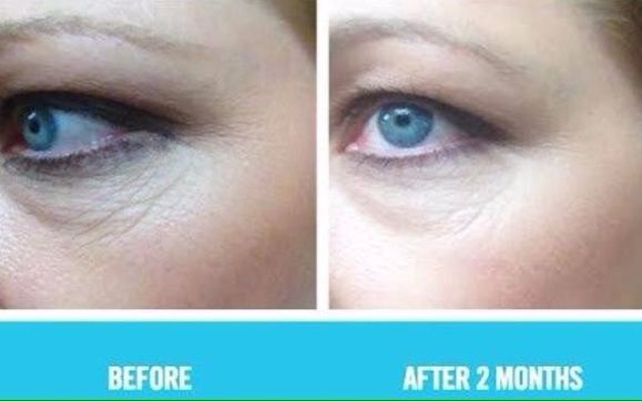 The Best Eye Cream By Rodan Fields Independent Consultant In
